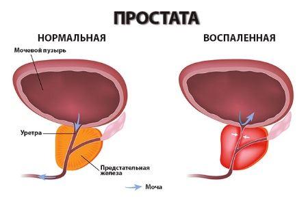 Нормальная и воспаленная простата