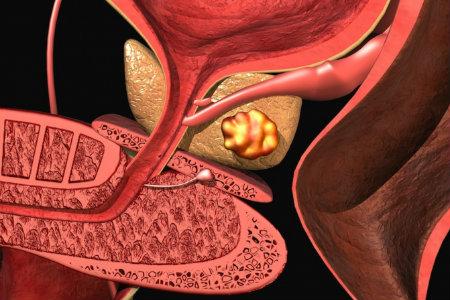 Гормонотерапия при раке предстательной железы: насколько это ...