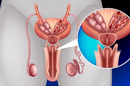 Гипертрофия предстательной железы - что это такое