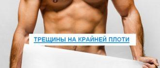 Трещины на крайней плоти у мужчин лечение