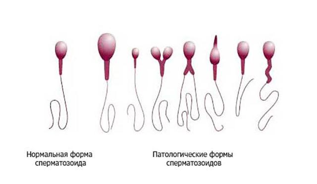 олигоастенотератозооспермия и естественная беременность
