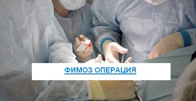 Фимоз операции