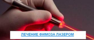 Лечение фимоза лазером