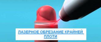 Лазерное обрезание крайней плоти