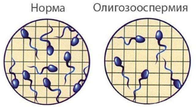 олигозооспермия можно ли забеременеть