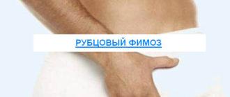 Рубцовый фимоз