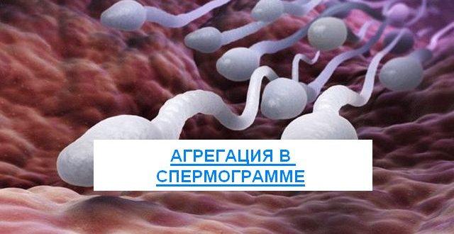 Агрегация в спермограмме