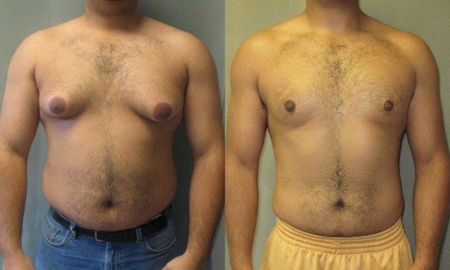 гинекомастия у мужчин лечение без операции