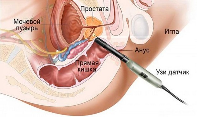 простаты биопсия