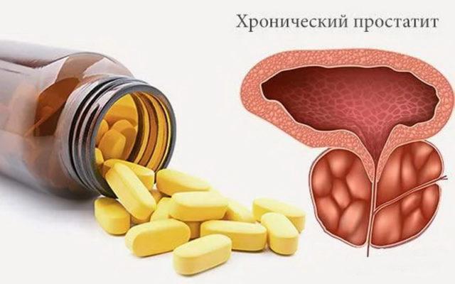 лечение простатита хронического