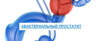 абактериальный простатит