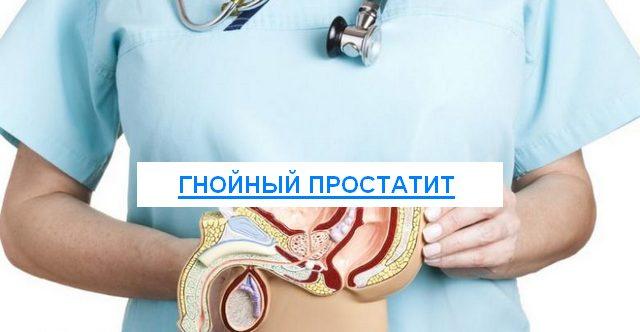 Простатит гнойный клинический простатит