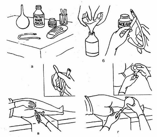 микроклизмы при аденоме предстательной железы