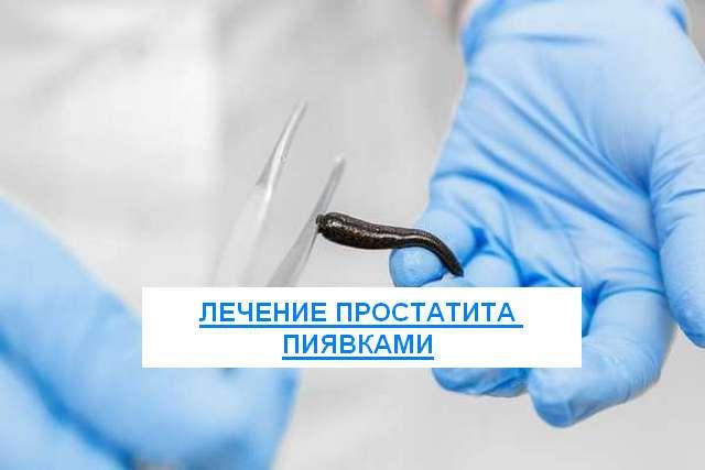 Простатиты лечение пиявками рекомендован для профилактики простатита