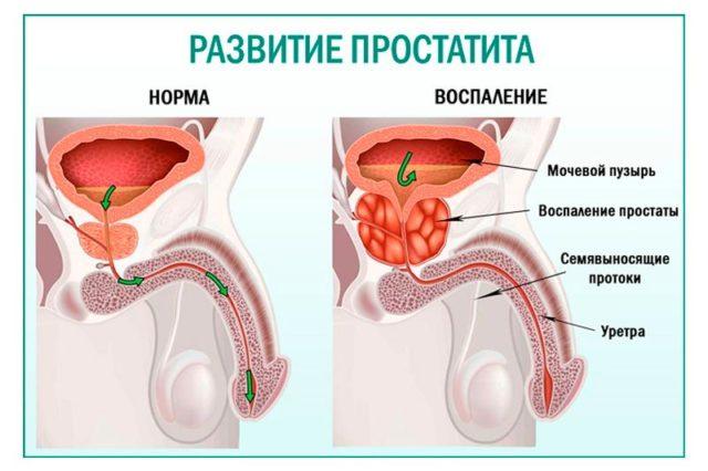 воспаление простаты у мужчин симптомы и лечение