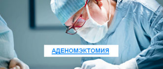 аденомэктомия